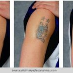 How To Remove Tattoo – Tattoo Removal Options
