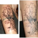 My Experience Lightening and Fading My Tattoo