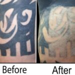 TCA Peels For Tattoo Removal – Do They Really Work