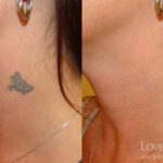 Tattoo Removal Research Papers